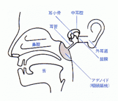 アデノイド増殖症